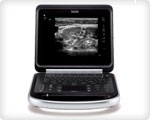 Портативная ультразвуковая система - УЗИ Edge SonoSite