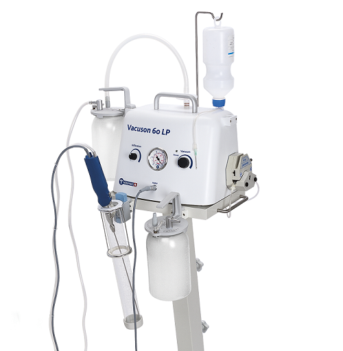 Медицинский отсасыватель-аспиратор для липосакции (со стойкой) - Vaсuson 60 L