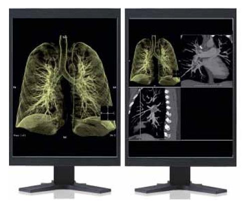 Доступ к изображениям из системы Synapse с любого компьютера