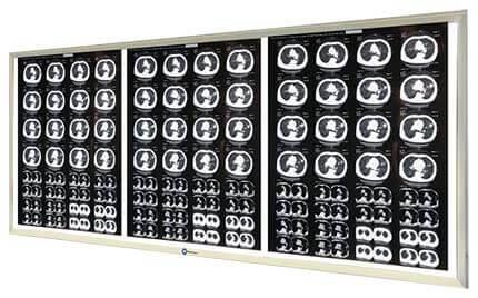 Трехкадровый негатоскоп для рентгеновских снимков