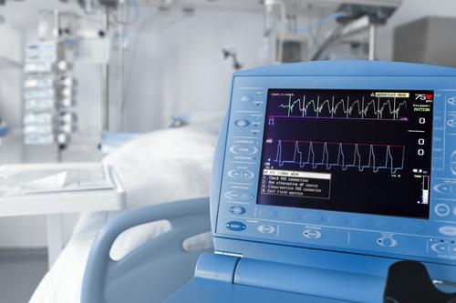 Прикроватный монитор пациента: какие показатели позволяет фиксировать