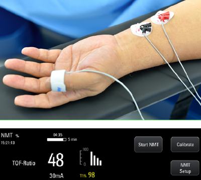 Аппарат для анестезии - A7